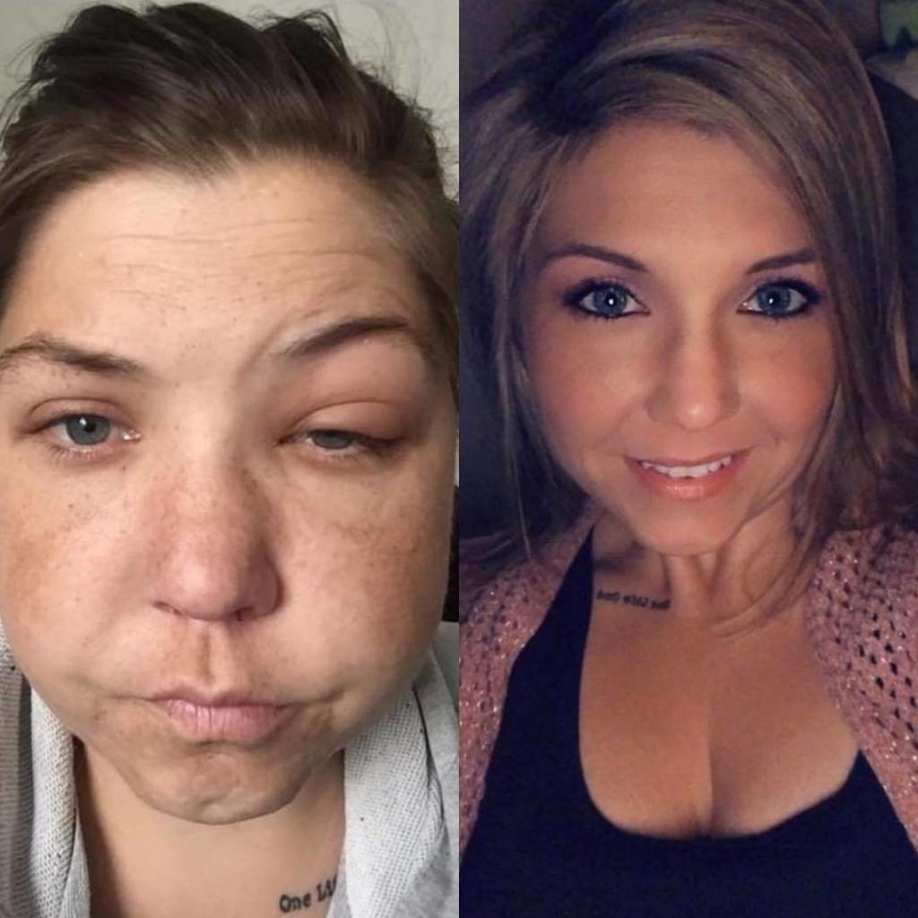 Чокнутые люди фото до и после российские