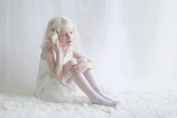 альбинос фото красота белый люди проект сказочный мир альбиносов