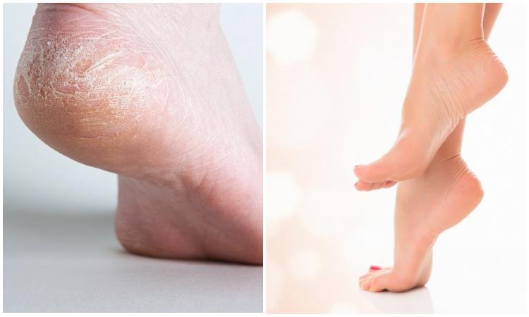 Гладкие и мягкие пяточки: как вернуть здоровье коже на ступнях без усилий и лишних затрат