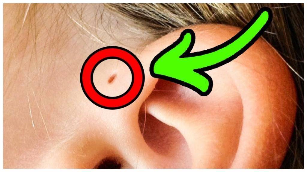 Почему некоторые люди рождаются с маленькими отверстиями возле ушей: научная гипотеза