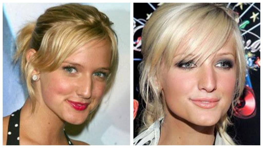 Тот случай, когда пластика пошла во благо: 10 знаменитых женщин, чья внешность поменялась только в лучшую сторону
