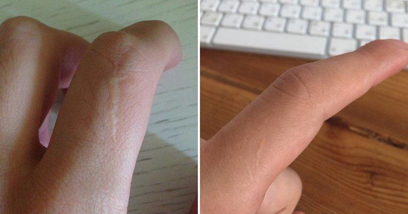 Люди в Сети обнаружили, что почти у всех мужчин есть шрамы на указательных пальцах