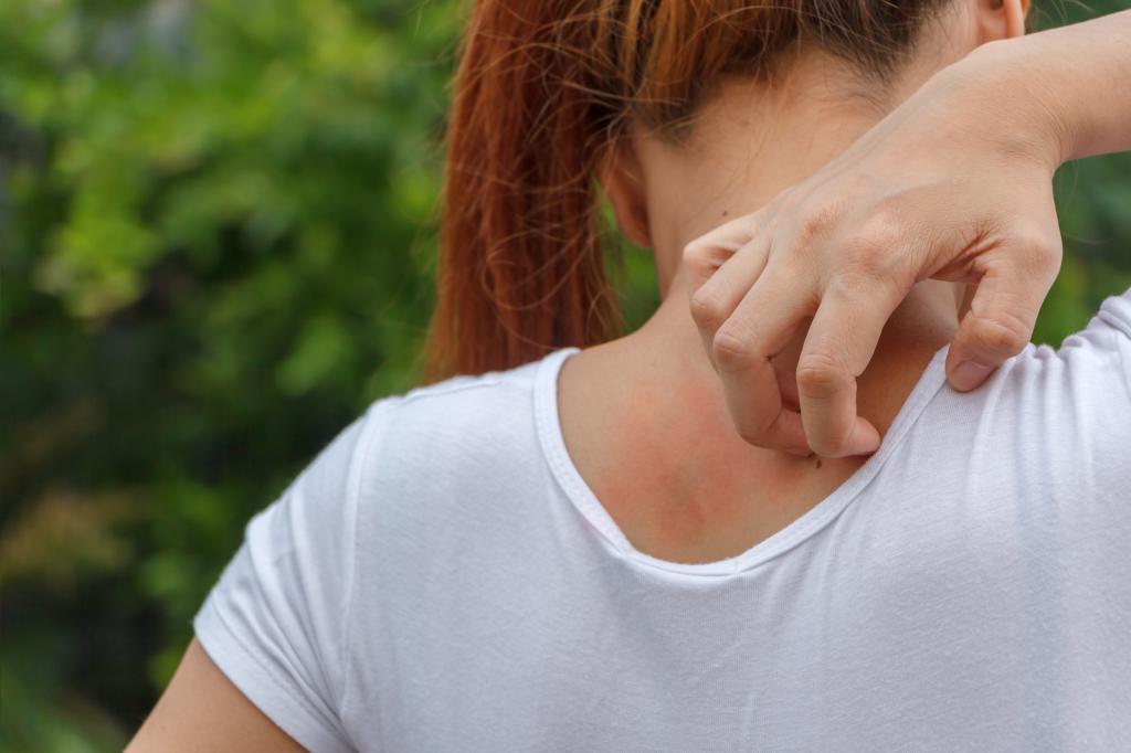 Чесотка у беременных симптомы 50