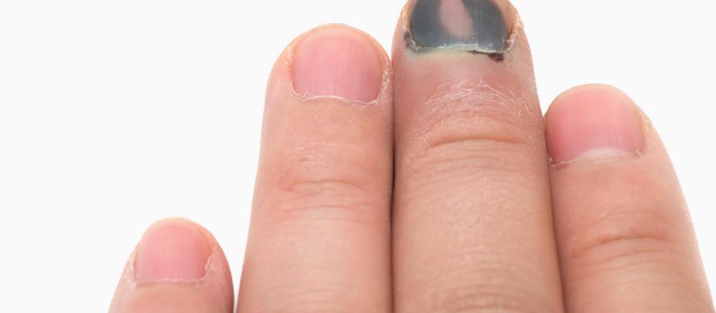 что делать при ушибе ногтя
