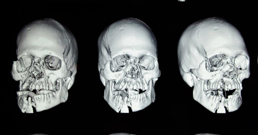 girl-bone-facial-fracture-having-mouth-sex