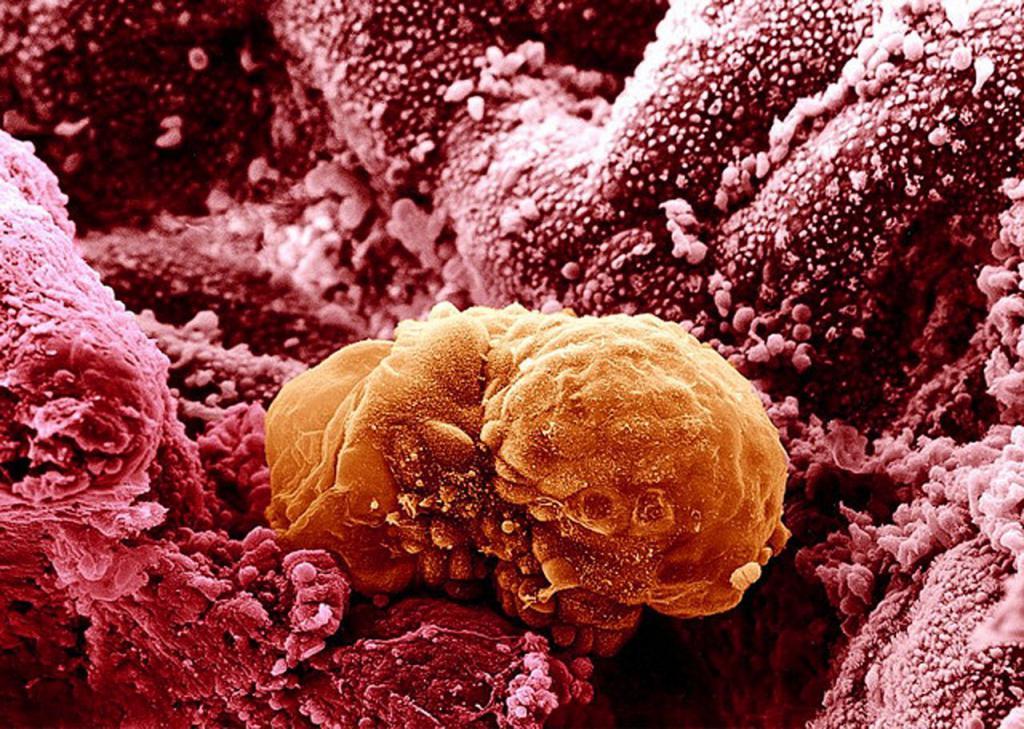 С какой стороны прикрепляется эмбрион 23