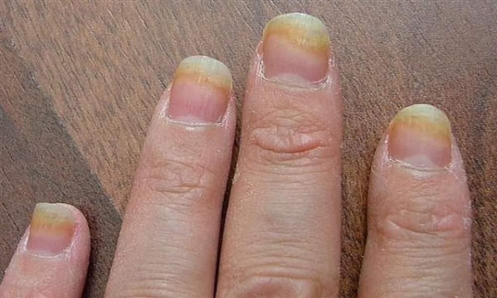 Грибковый кератит: симптомы, лечение, фото