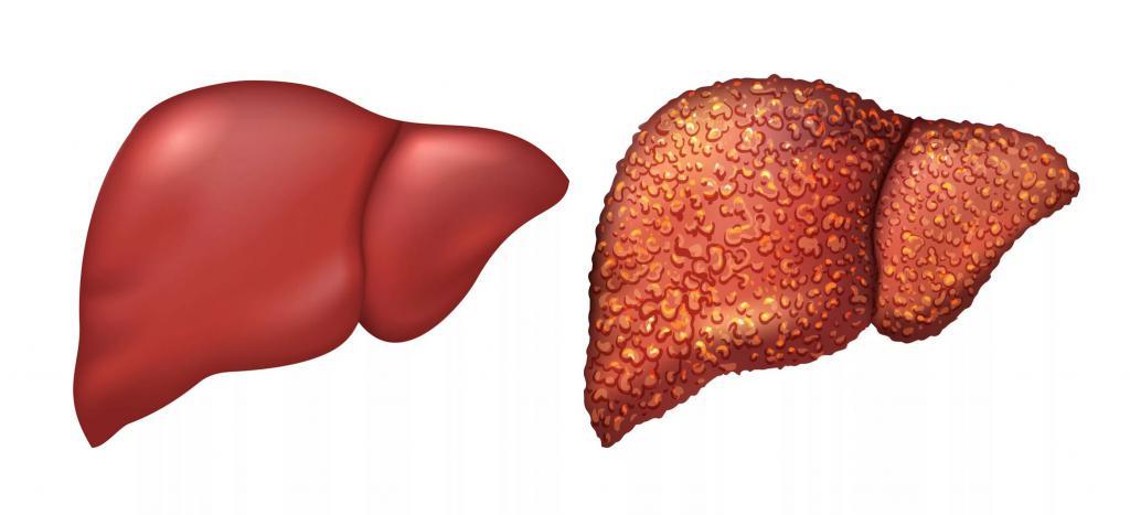 Диета при повышении алт и аст — Лечим печень
