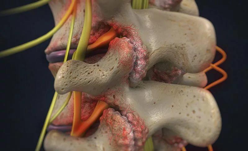 Стеноз спинного мозга