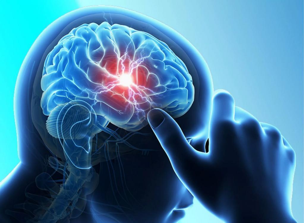 Нарушение функционирования мозга