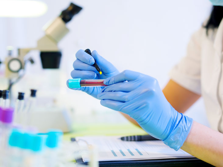 Анализы крови на печень: виды, подготовка к сдаче, расшифровка результатов
