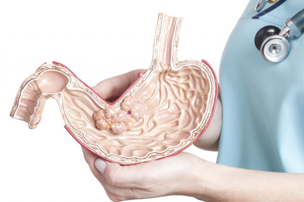 можно ли вылечить рак желудка 3 стадии