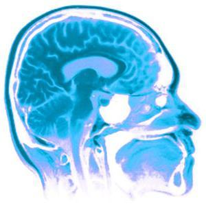 нарушение венозного оттока головы