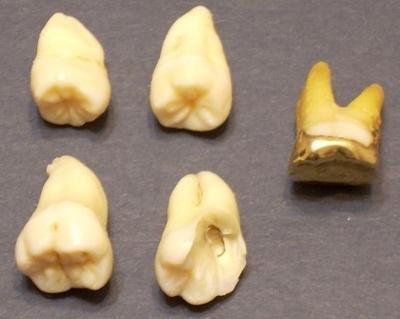 К чему снятся зубы выпадают