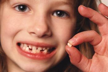 Сон вырывать все зубы