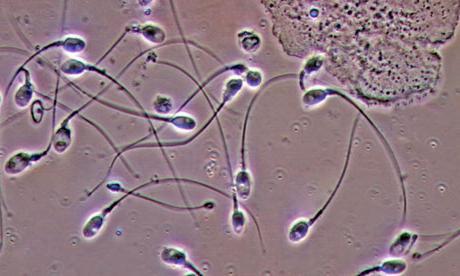 pochemu-sperma-prozrachnogo-tsveta
