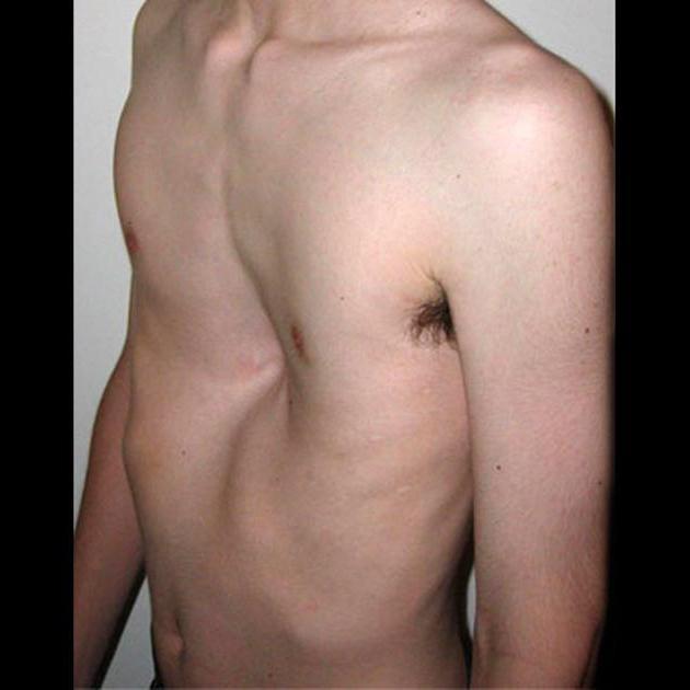 фото грудной сколиоз