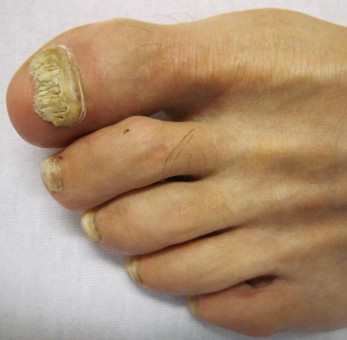Йод и уксусная эссенция от грибка ногтей