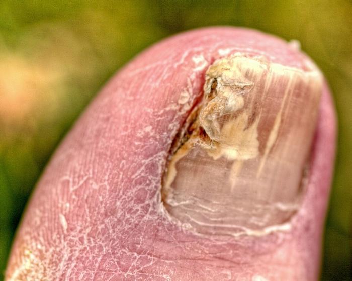 Как победить грибок на ногтях народными методами