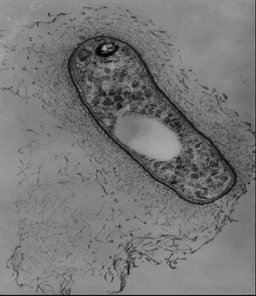 что едят паразиты в организме человека