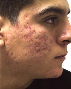 Дисбактериоз кишечника прыщи на лице