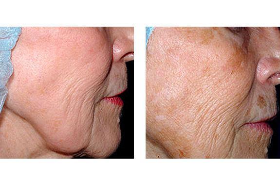 Омоложение лазером кожи лица