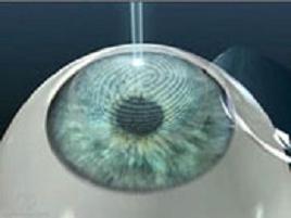 Операция на глаза: неоправданный риск или реальный шанс?