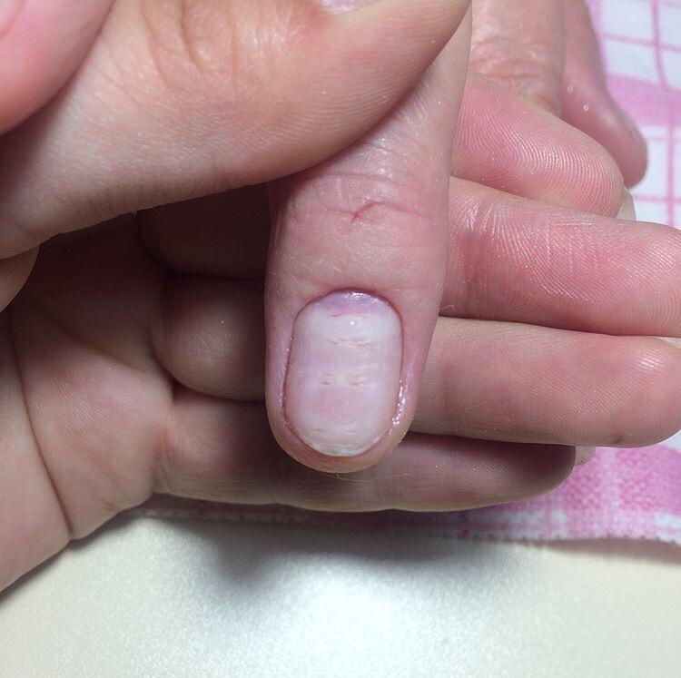 Damaged nail