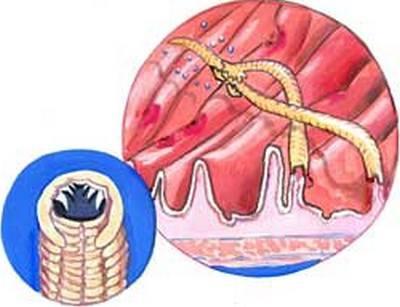 признаки паразитов у человека симптомы