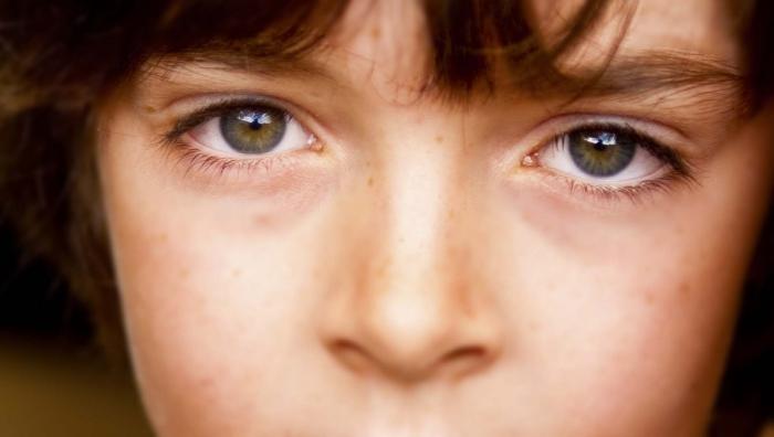 аллергия глаза чешутся лекарство капли