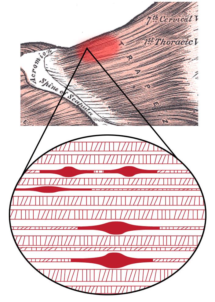 Триггерная точка
