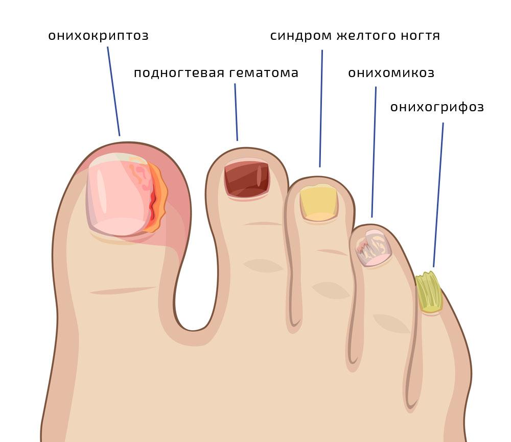 Ногтевой псориаз: фото, причины, симптомы и лечение