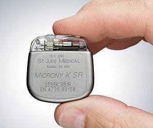 Что такое кардиостимулятор как вживляется