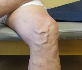 Диета при варикозе ног