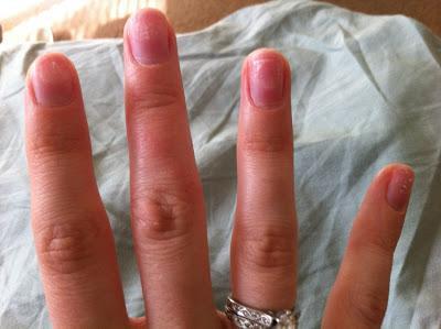 укрепление ногтей акриловой пудрой под гель лак отзывы