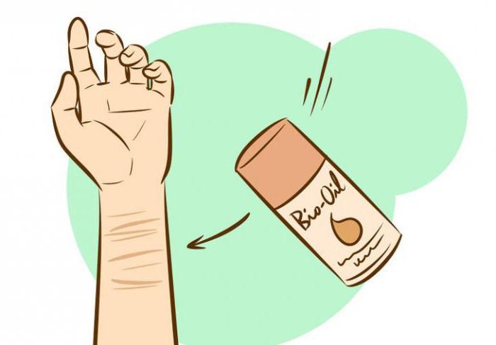 как убрать шрамы от порезов на руках дома