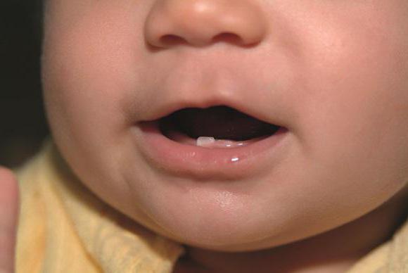 симптомы прорезывания клыков у ребенка