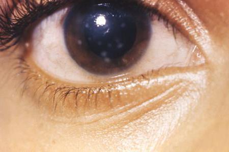 Бельмо на глазу у человека причины