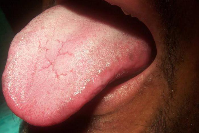 хронический кандидоз симптомы