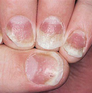 ониходистрофия ногтей лечение