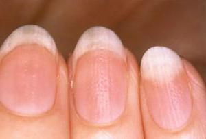 лечение ониходистрофии ногтей на руках