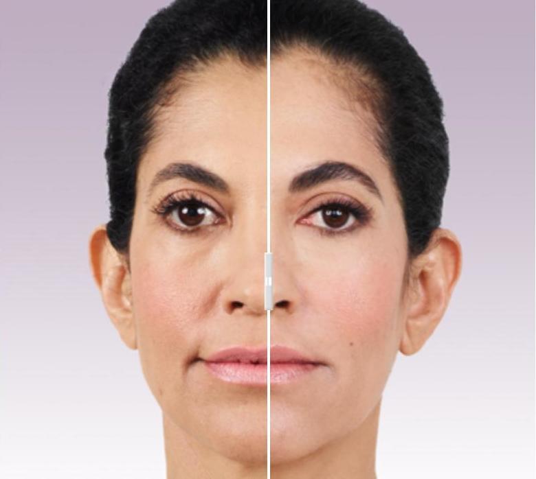 Гидроксиапатит кальция в косметологии: особенности применения, эффективность, фото и отзывы