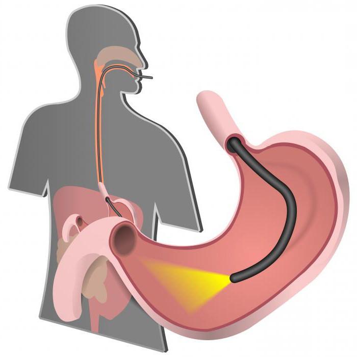 Субатрофический хронический гастрит