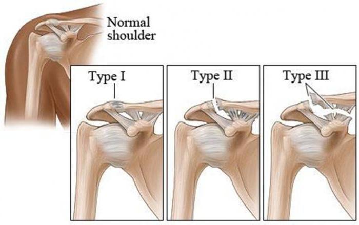 частичный разрыв сочленения плечевого сустава