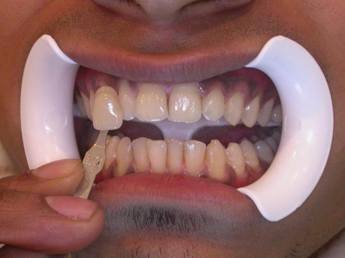 эффективные методы отбеливания зубов