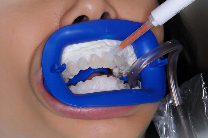 новейшие методы отбеливания зубов