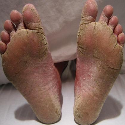 Как самостоятельно вылечить грибок на ногтях ног народными методами