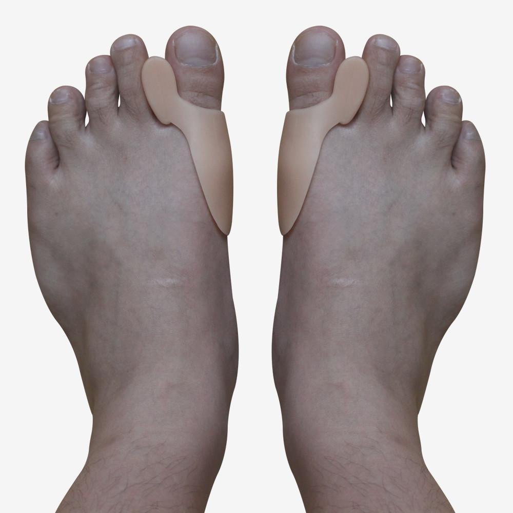 Артрит суставов стопы причины симптомы и лечение артрита стопы