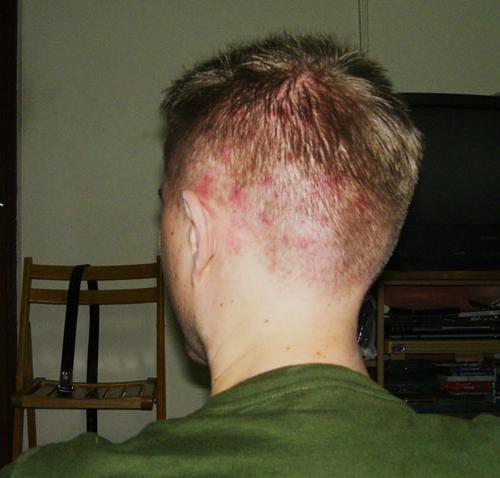 прищики на волосистой части головы