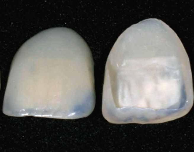 установка винир на зубы красноярск